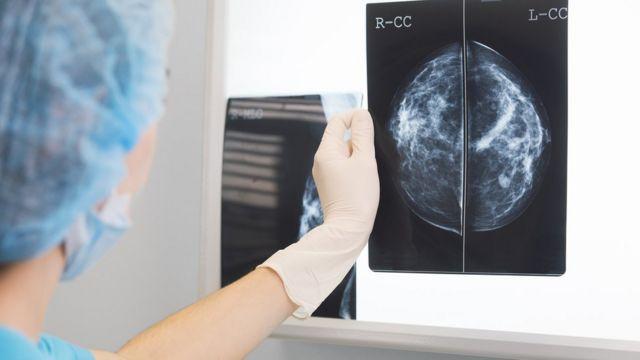 أعراض الاصابة بالسرطان