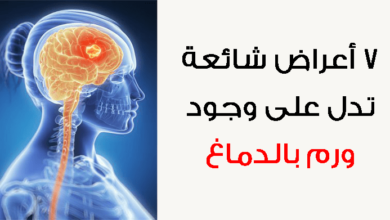 أعراض سرطان الرأس المبكرة