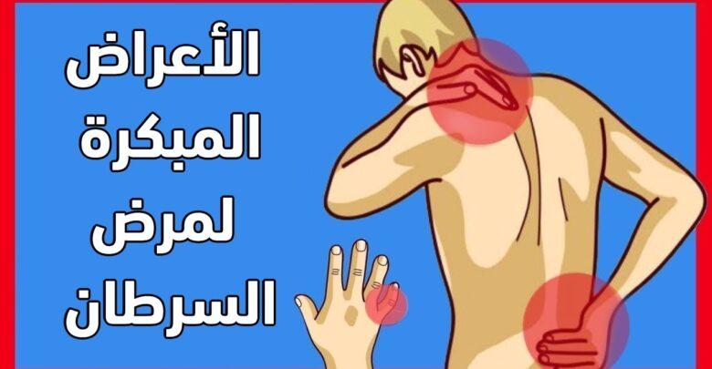 اعراض مرض الكانسر