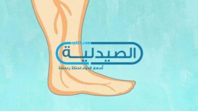 علاج تورم الساقين