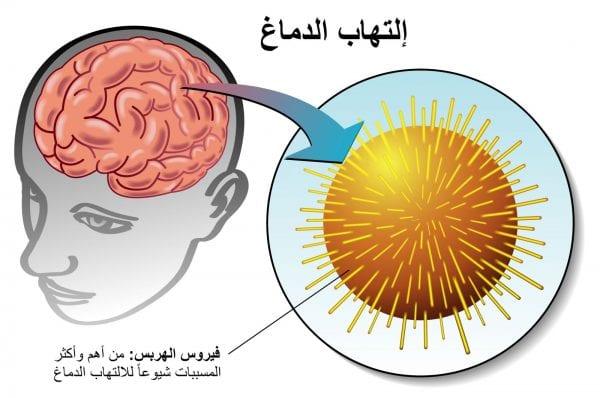 أعراض التهاب اعصاب الرأس والرقبة