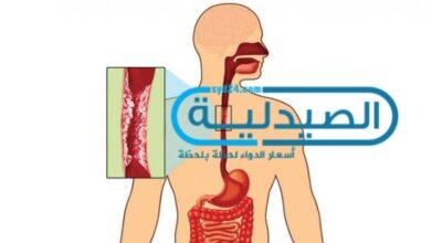 أعراض سرطان المريء