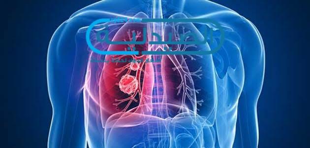 أعراض أورام الرئة