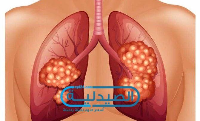 أعراض أورام الرئتين