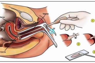 عملية جراحية في الرحم