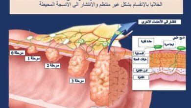 مراحل السرطان