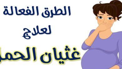 القيء والغثيان أثناء الحمل
