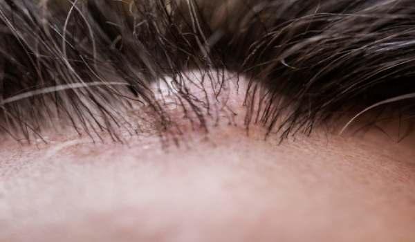 أسباب سرطان فروة الرأس
