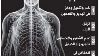 أسباب التهاب الساقين