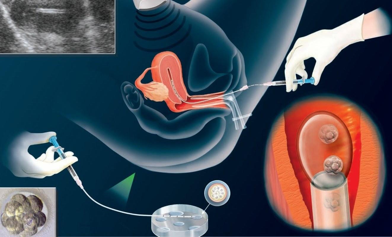الحقن المجهري والحمل الكيميائي